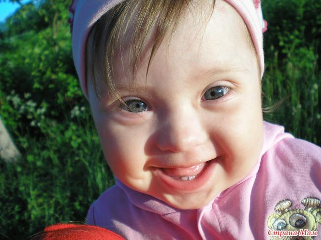 Фото ребенка дауна в 2 месяца